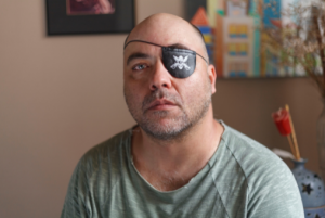 Alex Silveira: 21 years in search of justice for being blinded in one eye after being hit by a rubber bullet fired by the São Paulo police. Photo: Sergio Silva/Ponte Journalism